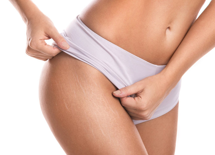 stretch-mark removal| Cosmetic Surgery Clinic, Coimbatore