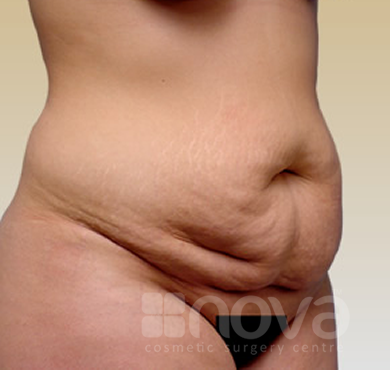 Before the Abdominoplasty Treatment | Tummy Tuck Cosmetic Surgery Centre