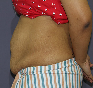 Tummy Tuck Before Surgery Photo | Abdominoplasty Cosmetic Surgery Clinic, Coimbatore