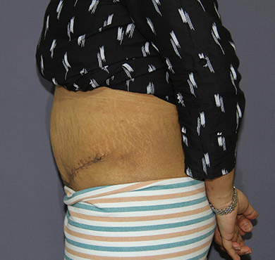 Tummy Tuck After Surgery Photo | Abdominoplasty Cosmetic Surgery Clinic, Coimbatore