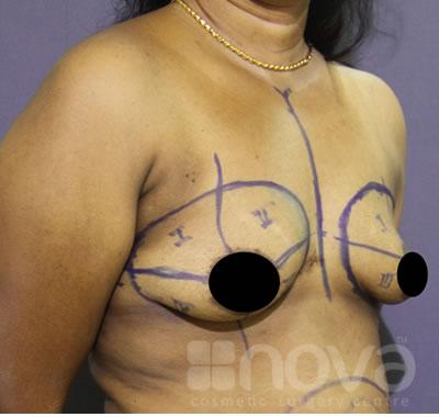 Breast Augumentation   Before Breast Enlargement Surgery Photo   Nova Cosmetic Surgery Centre Coimbatore