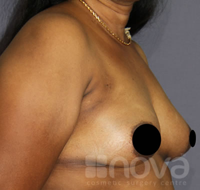 Breast Augumentation | After Breast Enlargement Surgery Photo | Nova Cosmetic Surgery Centre Coimbatore
