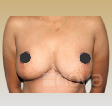 Female Breast Reduction | After Treatment Photo | Nova Cosmetic Surgery centre