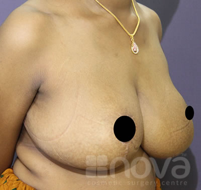 After the Breast Reduction Treatment Photo | Female Breast Reduction