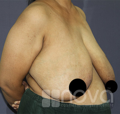 Female Breast Reduction Photos | Nova Cosmetic Surgery Clinic