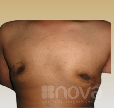 Before the Fat Grafting Treatment | Fat Transfer Breast Augumentation | Fat Grafting Centre