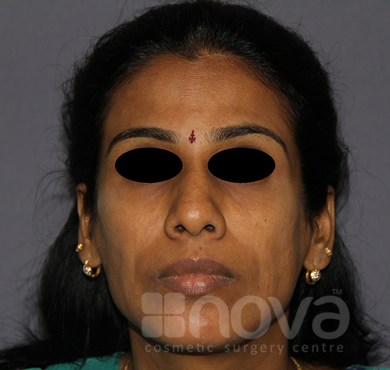 Before Treatment Photo | Fat Grafting Treatment for Chin | Fat Transfer Chin Augumentation