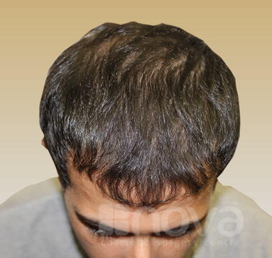 Hair Transplantation for Men After Photos | Nova Cosmetic Surgery Centre