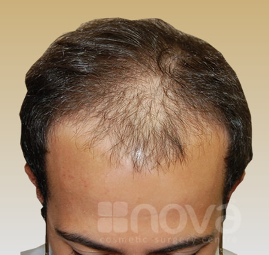 Hair Transplantation Before Photos | Nova Cosmetic Surgery Centre