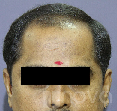 Hair Transplantation |Before Treatment Photos | Nova Cosmetic Surgery Centre