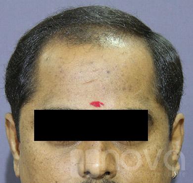 Hair Transplantation |Before Treatment Photos | Nova Cosmetic Surgery Centre