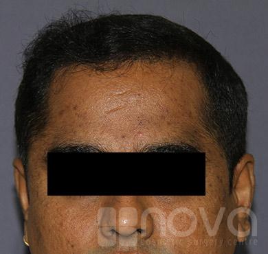 Hair Loss Treatment | Hair Transplant | Nova Cosmetic Surgery Centre