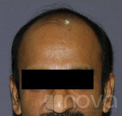 Before Hair transplantation Photos | Hair loss Treatment