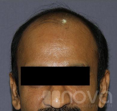 Before Hair transplantation Photos | Hair loss Treatment