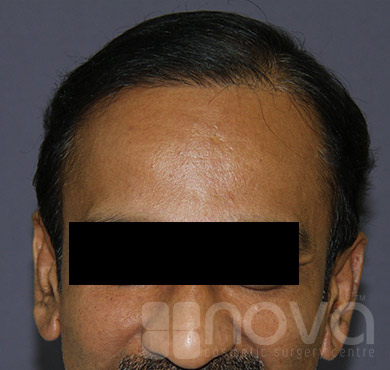 Hair Transplant | After Treatment Photos | Hair Fixing in Coimbatore