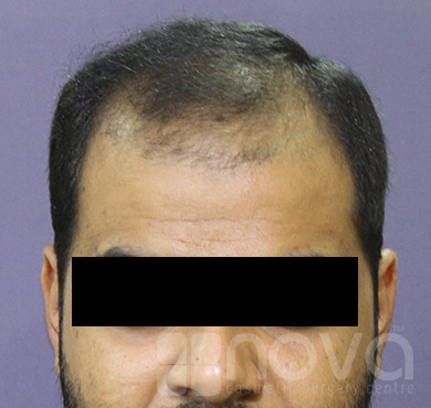 Hair Loss Treatment | Before Treatment Photos | Cosmetic Surgery Clinic