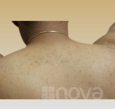 Laser Hair Removal Treatment | Hair Removal Form the Back |After Photo