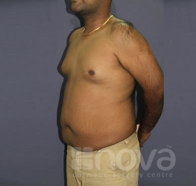 Liposuction, Abdominal Fat Treatment | Before the surgery photo | Cosmetic Surgery Centre