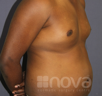 Before Liposuction Treatment Photo | Liposuction, Belly Fat Surgery| Cosmetic Clinic
