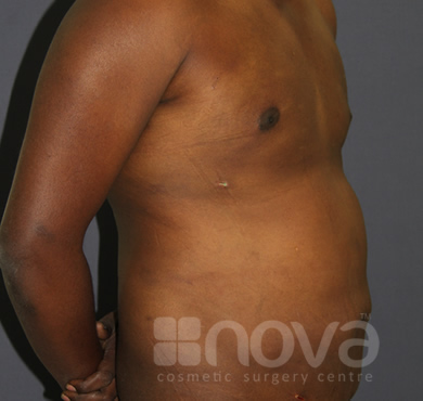 After Liposuction Treatment Photo | Liposuction, Belly Fat Surgery| Cosmetic Clinic