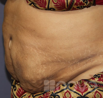 Liposuction Treatment | After the surgery photo | Cosmetic Surgery Centre