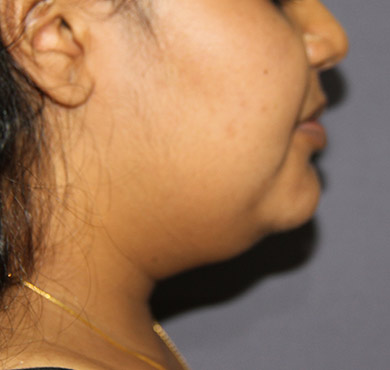 Liposuction Surgery for Face| After Photo | Nova Cosmetic Surgery Centre, Coimbatore