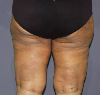 Liposuction Surgery for Outer Thighs | Liposuction Treatment After Photo