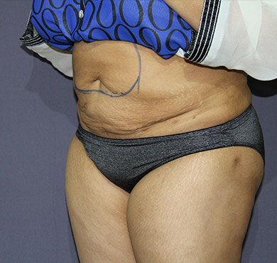 Liposuction Surgery for Belly Fat | After Treatment Photo