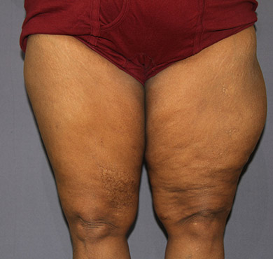 Liposuction Treatment for Inner Thighs | Liposuction Sugery Before Photo