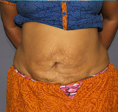 Liposuction Surgery for Abdomen | After Treatment Photo | Cosmetic Surgery Clinic