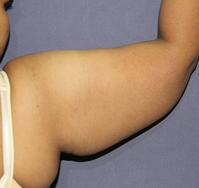 Arm Liposuction Surgery | Before Photo | Liposcuction Cosmetic Surgery Clinic
