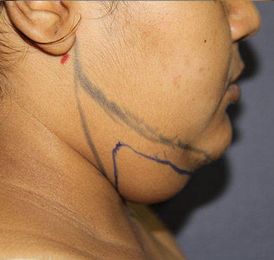Liposuction Surgery for Face| Before Photo | Nova Cosmetic Surgery Centre, Coimbatore