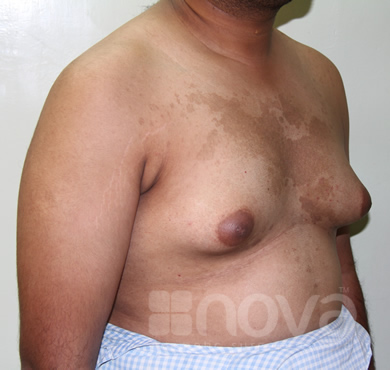 Before Male Breast Correction Treatment | Gynecomastia | Male Breast Reduction