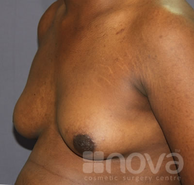 Before Gynecomastia Treatment Photos | Male Breast Reduction | Cosmetic Surgery Clinic