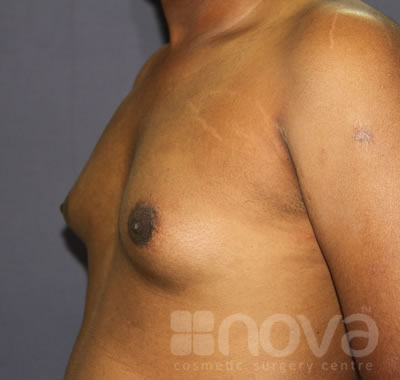 Gynecomastia | Before Treatment Photo | Male Breast Reduction | Cosmetic Surgery Clinic