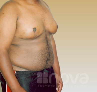 Male Breast Correction - After Treatment Photos | Gynecomastia