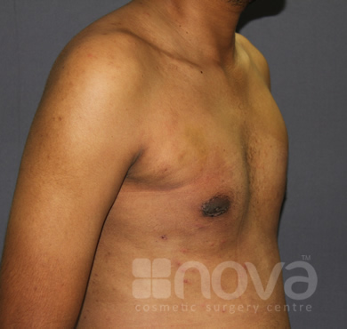 Male Breast Correction | After the Treatment Photos | Gynecomastia