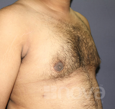 After Male Breast Correction Treatment | Gynecomastia | Male Breast Reduction
