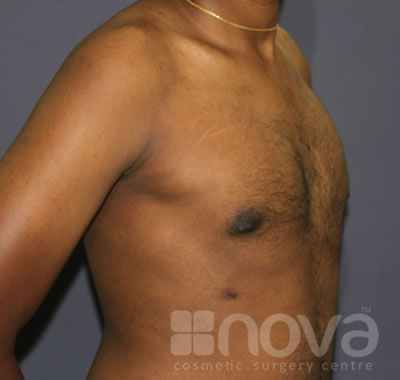 Gynecomastia | After Treatment Photos | Male Breast Correction