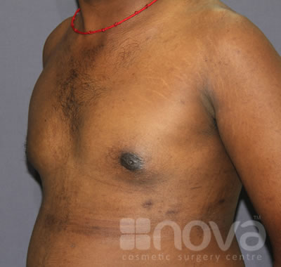 After Gynecomastia Treatment Photos | Male Breast Reduction | Cosmetic Surgery Clinic