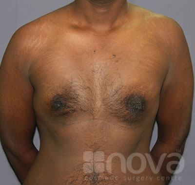 After Gynecomastia Treatment Photos | Male Breast Correction | Cosmetic Surgery Clinic