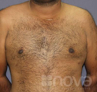 Gynecomastia | Male Breast Reduction | Nova Cosmetic Surgery Centre