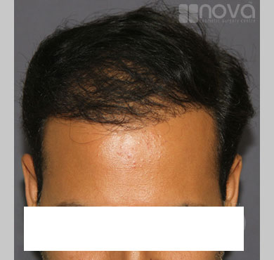 Hair Restoration Treatment After Photos | Cosmetic Surgery Centre