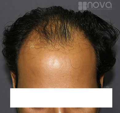 Hair Transplantation for Men Before Photos | Nova Cosmetic Surgery Centre