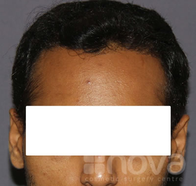 Hair Transplantation for Men | After Treatment Photos