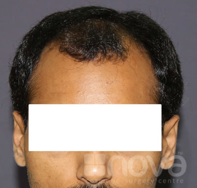Hair Transplantation for Men | Before Treatment Photos