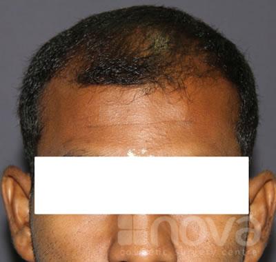 Hair Loss Treatment | Before Treatment Photos | Nova Cosmetic Surgery Centre