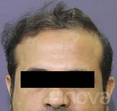 After Treatment Photos | Hair Restoration | Non-Surgical Treatment Centre