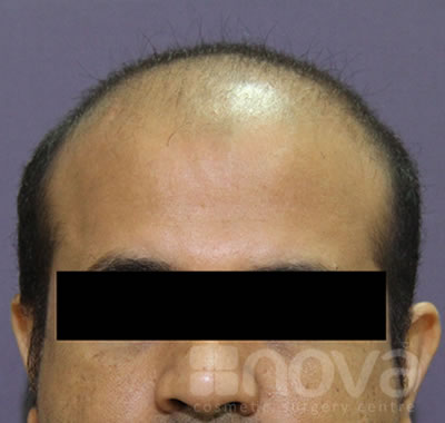 Before the Hair Transplantation Treatment | Cosmetic Surgery Centre