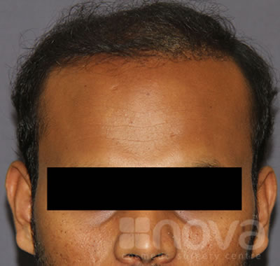 Hair Transplantation | After Treatment Photo | Hair Fixing Centre